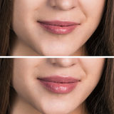 Female lips before and after augmentation Stock Images