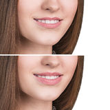 Female lips before and after augmentation. Beautiful female lips before and after augmentation royalty free stock photos