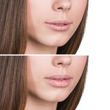 Female lips before and after augmentation. Beautiful female lips before and after augmentation Royalty Free Stock Image