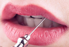Female lips and medical needle, concept of plastic and aesthetic Royalty Free Stock Images