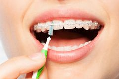 Female mouth with braces and interdental brush. Female mouth with dental braces and interdental brush Royalty Free Stock Image