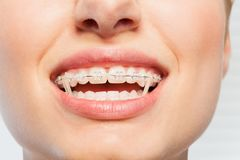 Female mouth with orthodontic elastics on braces. Close-up picture of female mouth with orthodontic elastic bands on braces Royalty Free Stock Images