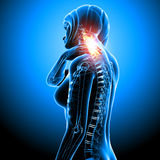 Female with neck pain in blue. 3d rendered medical x-ray illustration of female with neck pain in blue Royalty Free Stock Photography