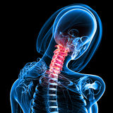Female neck pain. 3d rendered medical x-ray illustration of transparent Female neck pain and black background Royalty Free Stock Image
