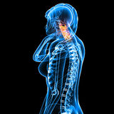 Female neck pain. 3d rendered medical x-ray illustration of transparent Female neck pain and black background Stock Photo