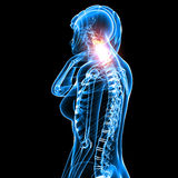 Female neck pain. 3d rendered medical x-ray illustration of transparent Female neck pain with black background Royalty Free Stock Photo