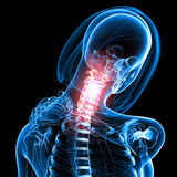 Female neck pain. 3d rendered medical x-ray illustration of transparent Female neck pain with block background Royalty Free Stock Photos