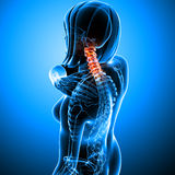 Female neck pain. 3d rendered medical x-ray illustration of transparent Female neck pain with blue background Royalty Free Stock Photography