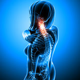 Female neck pain. 3d rendered medical x-ray illustration of transparent Female neck pain with blue background Stock Photography