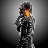 Female neck pain Stock Photo