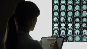 Female neurologist looking thoughtfully at brain x-ray, writing down diagnosis
