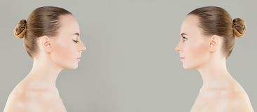 Free Female Nose Before And After Cosmetic Surgery Or Retouch Royalty Free Stock Photos - 102721098