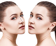 Female nose before and after cosmetic surgery Royalty Free Stock Image