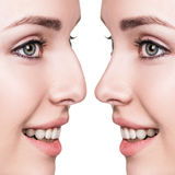 Female nose before and after cosmetic surgery stock images