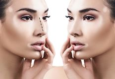 Female nose before and after cosmetic surgery. Portrait of female nose before and after cosmetic surgery. Rhinoplasty concept Stock Images