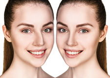 Female nose before and after surgery Stock Images