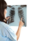 Female nurse pointing at x-ray. Female nurse pointing at lung x-ray isolated on white background Royalty Free Stock Photos