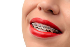 Female open mouth showing metal Braces royalty free stock photo