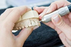 Female orthodontist working. On a prosthesis Royalty Free Stock Image