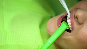 Female patient at dentist chair, procedure of bleaching teeth, modern clinic stock photo