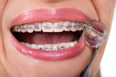Female patient showing her lingual braces on dental mirror Stock Photos
