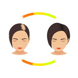 Female pattern baldness treatment Stock Photo