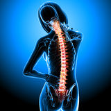 Female skeleton with back pain. 3d rendered medical x-ray illustration of female skeleton with back pain in blue background Stock Photography