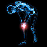 Female skeleton with knee pain Royalty Free Stock Photo