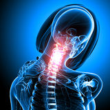 Female skeleton with pain in neck. 3d rendered medical x-ray illustration of female skeleton with pain in neck Royalty Free Stock Photo