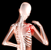 Female skeleton with shoulder pain Stock Images