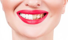 Female smile before and after bleaching. Whitening teeth. Woman teeth before and after bleaching. Whitening teeth Stock Photos