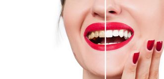 Female smile before and after bleaching. Whitening teeth. Woman teeth before and after bleaching. Whitening teeth Stock Photography