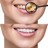 Female smile before and after teeth cleaning from germs. Female smile before and after teeth cleaning. Magnifying glass shows microbes in gums. Healthy teeth Stock Photos