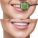 Female smile before and after teeth cleaning from germs. Female smile before and after teeth cleaning. Magnifying glass shows microbes in gums. Healthy teeth Royalty Free Stock Photo