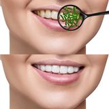 Female smile before and after teeth cleaning from germs. Female smile before and after teeth cleaning. Magnifying glass shows microbes in gums. Healthy teeth Royalty Free Stock Photos