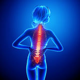 Female spine pain Royalty Free Stock Images