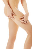 Female squeezes cellulite skin on her legs. Close-up shot on white background. Stock Photos