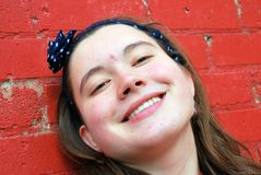 Female teenager with acne. Royalty Free Stock Photography
