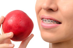 Female teeth with dental braces and red apple Royalty Free Stock Photo