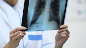 Female therapist holding lung x-ray, patient examination result, diagnosis stock footage