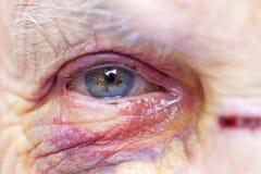 Femme agée blessée photo stock
