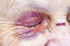 Femme agée blessée photographie stock