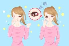 Femme avec douleur oculaire illustration libre de droits