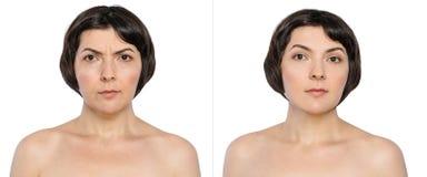Femme avec et sans des légères brûlures de vieillissement, double menton, rides d'inquiétude, plis nasolabial avant et après la p Images stock