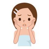 Femme avec la peau tachetée avec les pores et le point noir profonds Photo stock