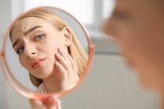 Femme avec le problème de perte de cil regardant dans le miroir à l'intérieur photographie stock libre de droits