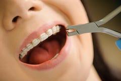 Femme avec les accolades en céramique sur des dents au bureau dentaire Photo stock