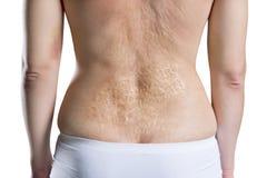 Femme avec une grande cicatrice après brûlure sur le dos, d'isolement sur le fond blanc images stock