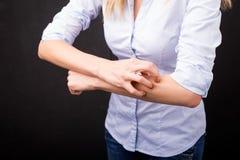 Femme ayant une réaction allergique images stock