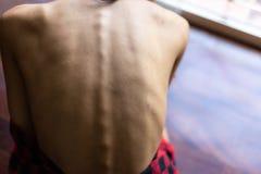 Femme de modèle d'anorexie de portrait La belle femme modèle regarde la peau photos stock